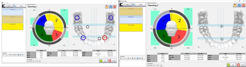 clenching 1 e 2 software kinelock
