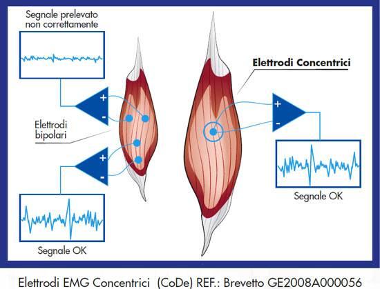 elettrodi bipolari vs concentrici