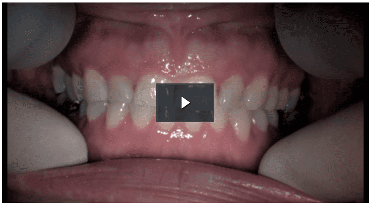 Treatment planning with Futudent per la didattica online